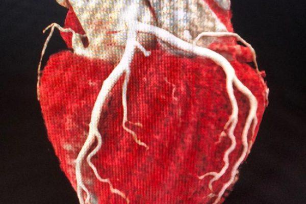 Cardiac CT course Rotterdam Erasmus CT cursus
